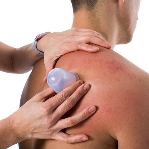Fasciq silicone cupping shoulder (2)