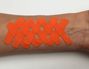 medical-taping-scars-2